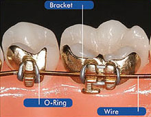ibraces-diagram