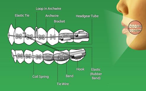 Braces diagram vancouver orthodontist brent douglas braces diagram ccuart Choice Image