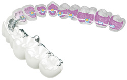 harmony orthodontic system